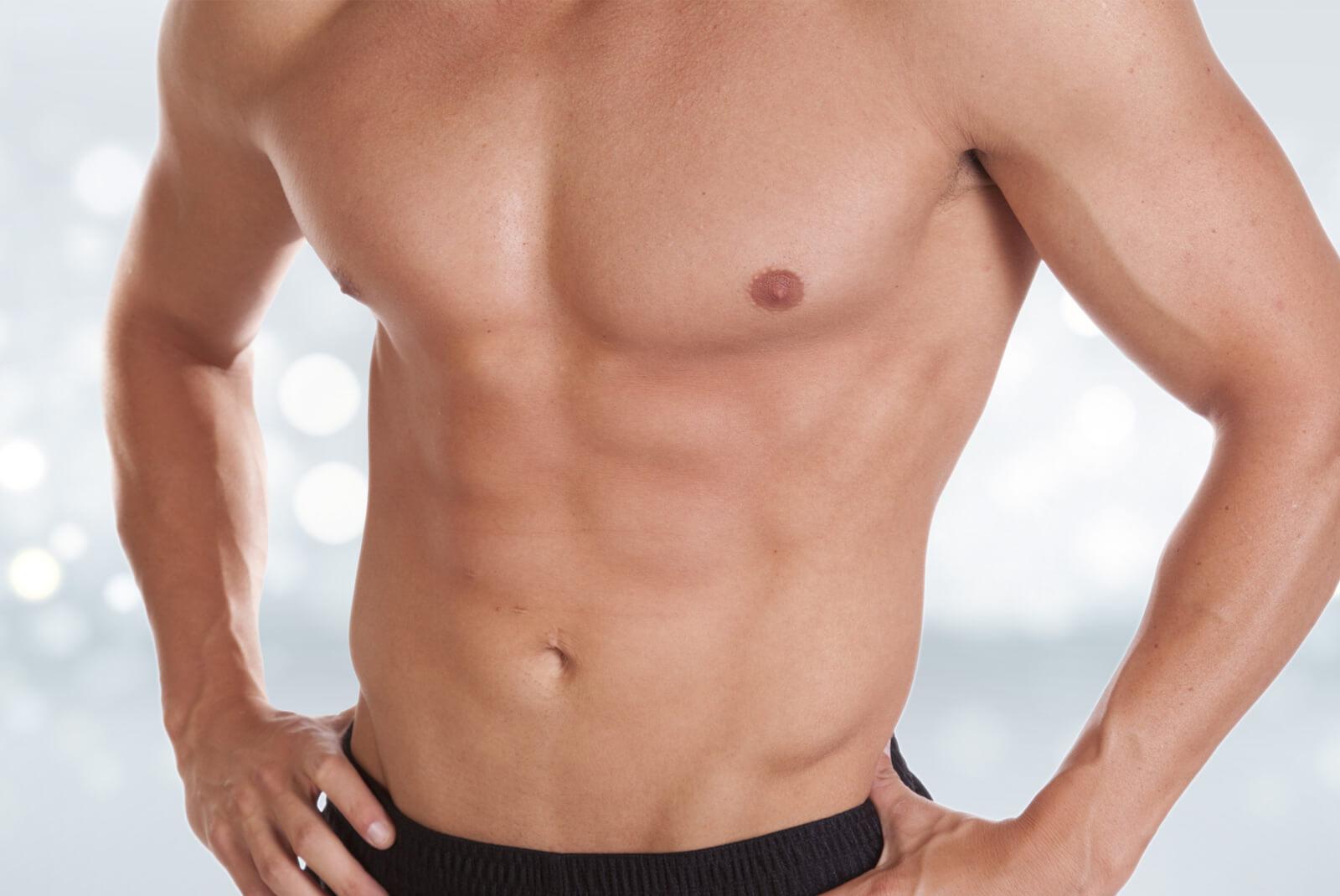 Gynécomastie, une augmentation du volume de la glande mammaire chez l'homme.