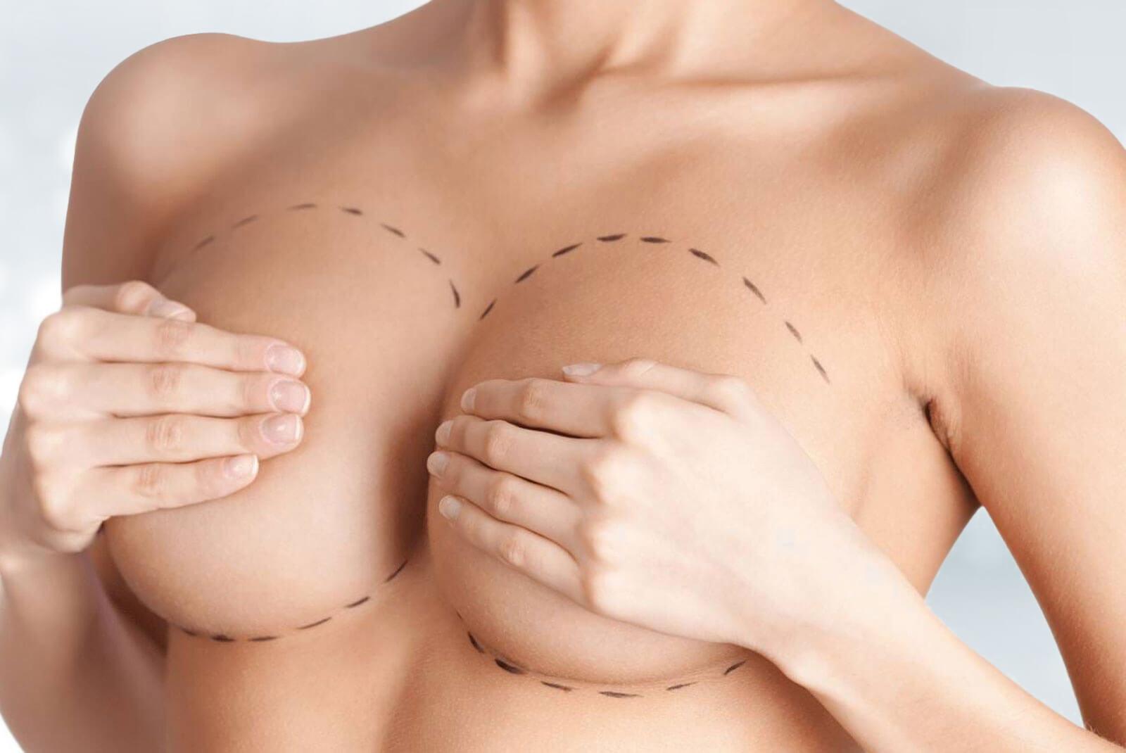 Augmentation mammaire par implants ou prothèses
