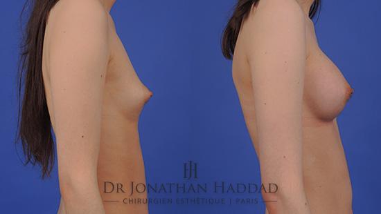 Résultat d'une augmentation mammaire par implant