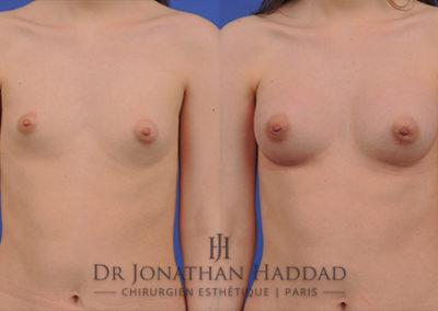 Résultat d'une augmentation mammaire par prothèses mammaires