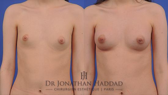 Avant/Après une augmentation mammaire par prothèses
