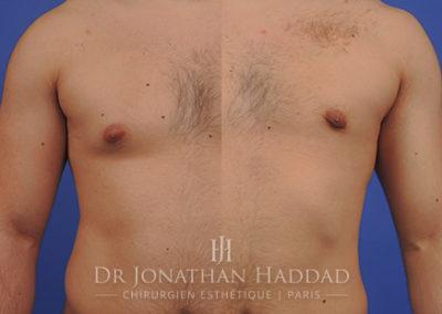 Comparaison avant et après une opération de gynécomastie chez l'homme