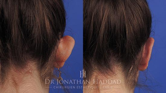 Avant/aprèss une otoplastie par le Dr Jonathan Haddad