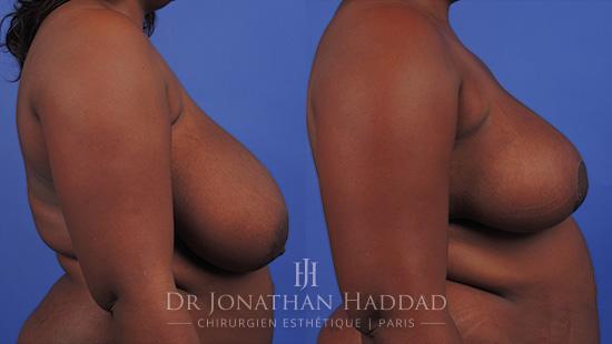 Avant/Après une réduction mammaire