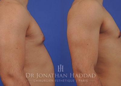 Résultat de l'opération de gynécomastie vue de profil