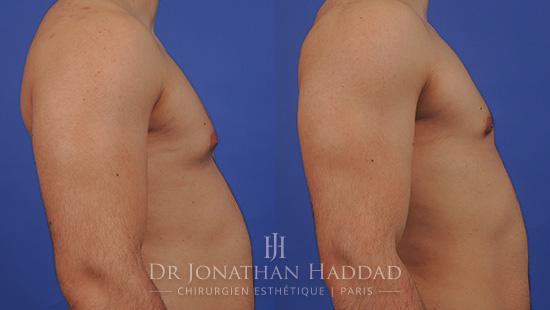 Résultat d'une opération de gynécomastie par le Dr Haddad Jonathan