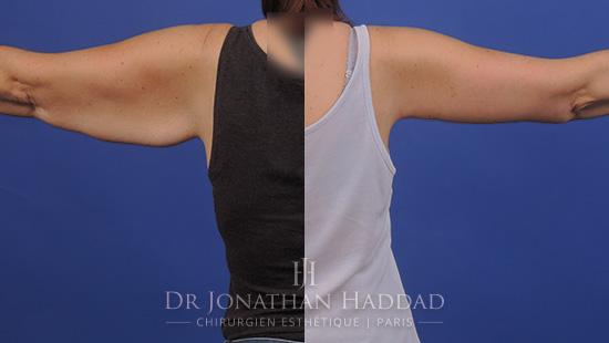 Avant/Après une brachioplastie par le Docteur Jonathan Haddad