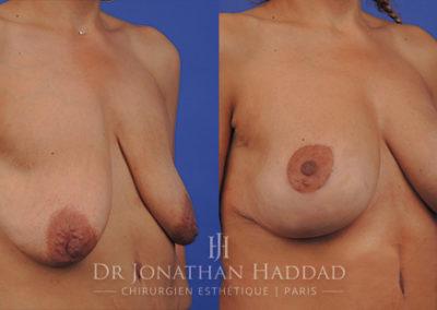 Lifting des seins ou cure de ptôse mammaire