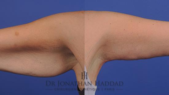 Avant/Après un lifting des bras par le Docteur Jonathan Haddad