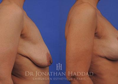 Photos avant-après un lifting des seins avec augmentation mammaire