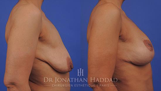 Résultat d'un lifting des seins par le Docteur Jonathan Haddad