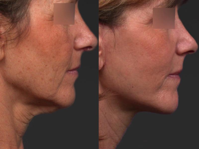 Réalisation d'un mini lifting du visage Résultat avant/après à 1 mois d'intervalle permettant une redéfinition du cou et de l'ovale du visage