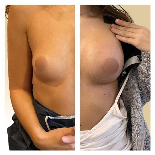 Avant-Après une chirurgie d'augmentation mammaire prise en charge par la sécurité sociale (face)