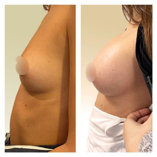 Avant-Après une chirurgie d'augmentation mammaire prise en charge par la sécurité sociale (profil)