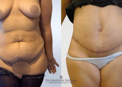 Résultat après une opération d'abdominoplastie