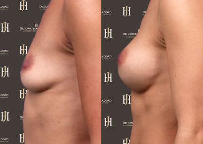 Avant-après augmentation mammaire par prothèses - Vue de profil