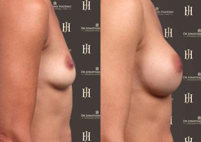 Avant-après augmentation mammaire par prothèses - Vue de Face