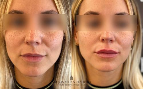 Avant-après Injection aux lèvres, pour rendre les lèvres plus pulpeuses.