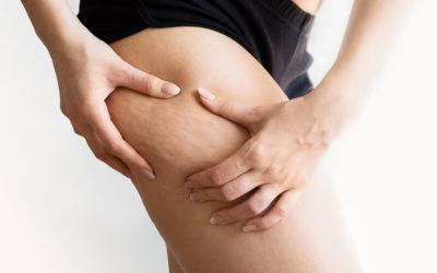 Cellfina® contre la cellulite, le traitement sans chirurgie qui fait ses preuves