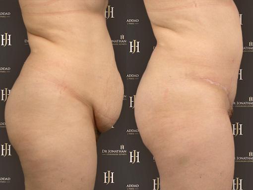 Avant-après un Mommy Makeover, plastie abdominale permettant de retrouver un ventre plat.