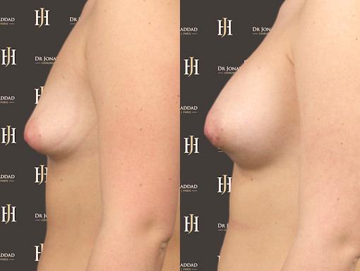 Résultat après une opération corrigeant les seins tubéreux