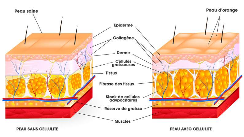 Schéma de la formation de la cellulite