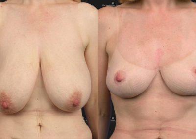 Résultat après un lifting des seins, avant-après l'opération