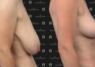 Photo avant-après une cure de ptôse mammaire