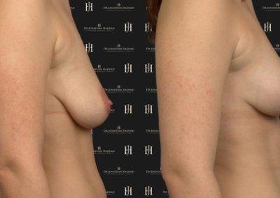Photo avant-après un lifting des seins par le Dr HADDAD