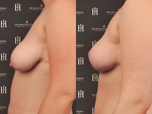 Lifting des seins dans le cadre d'un Mommy Makeover