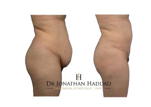 Avant-après une plastie abdominale après grossesse