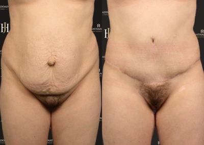 Résultat et cicatrice après abdominoplastie