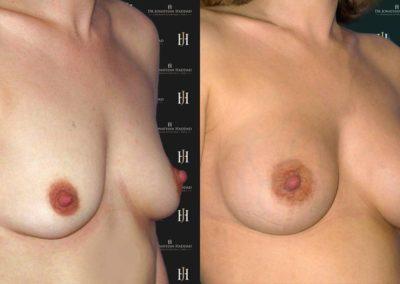 Résultat après une augmentation mammaire par prothèses