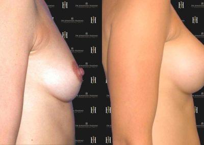 Augmentation du volume des seins grâce aux prothèses mammaires