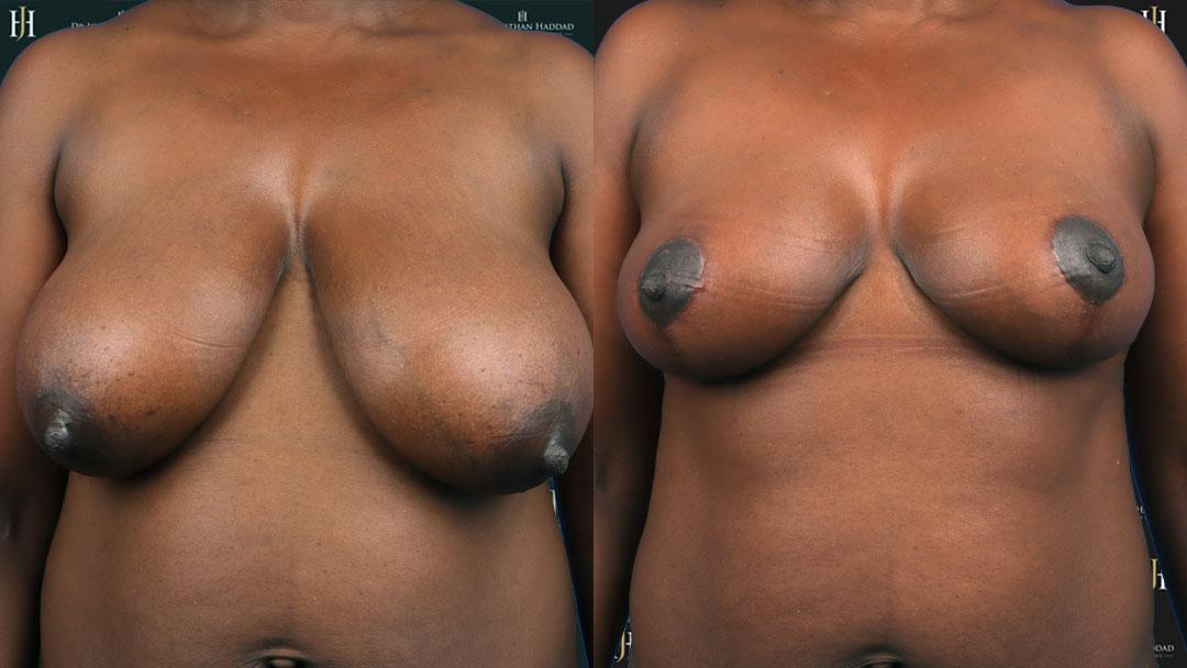 Résultat après une réduction mammaire