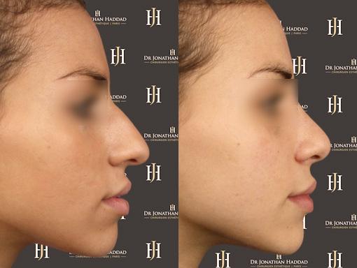 Correction de la bosse du nez grâce à une opération de rhinoplastie