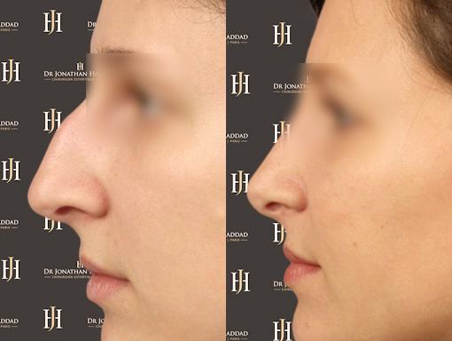 Avant-Après une opération de rhinoplastie