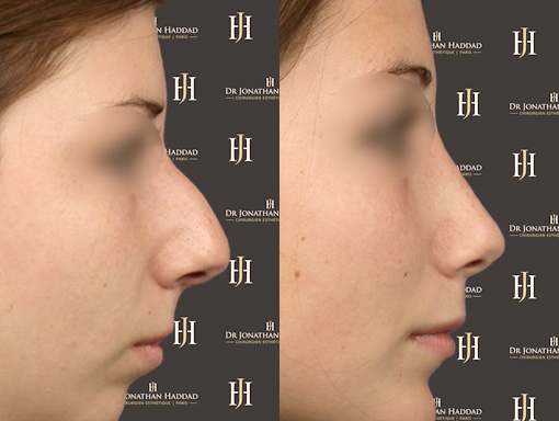 Chirurgie de rhinoplastie par le Docteur HADDAD, Résultat naturel