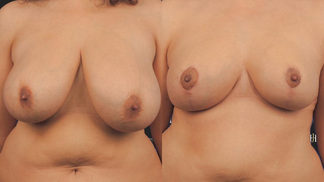 Correction d'une hypertrophie mammaire par une chirurgie de réduction.