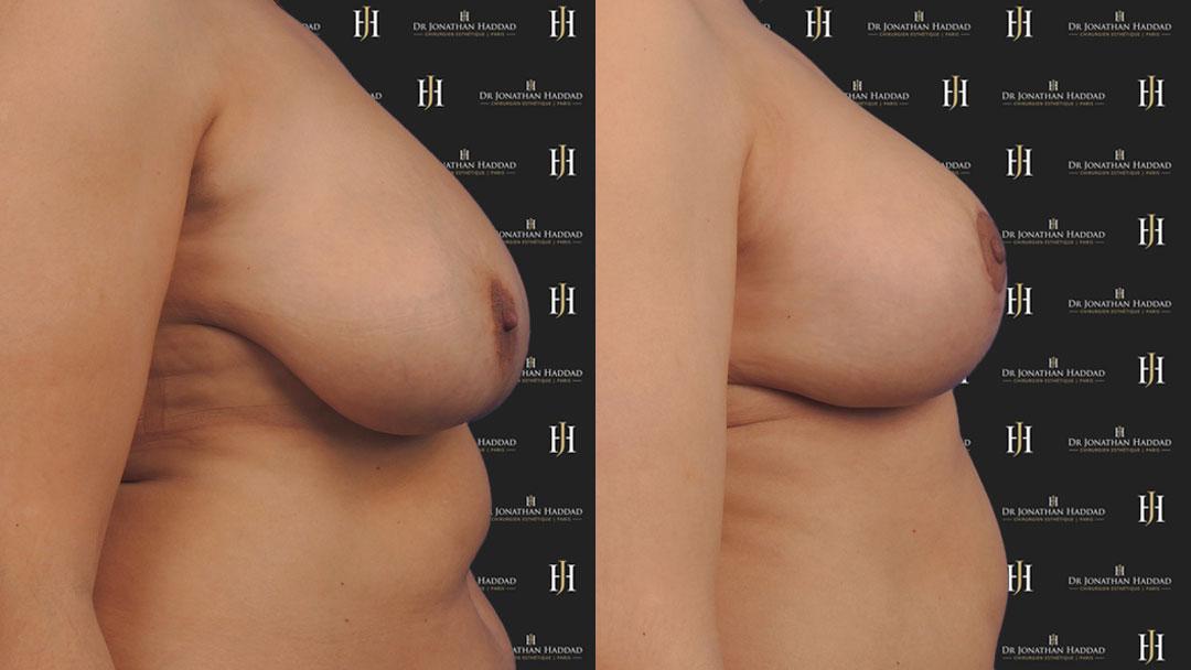 Résultat après chirurgie de réduction mammaire