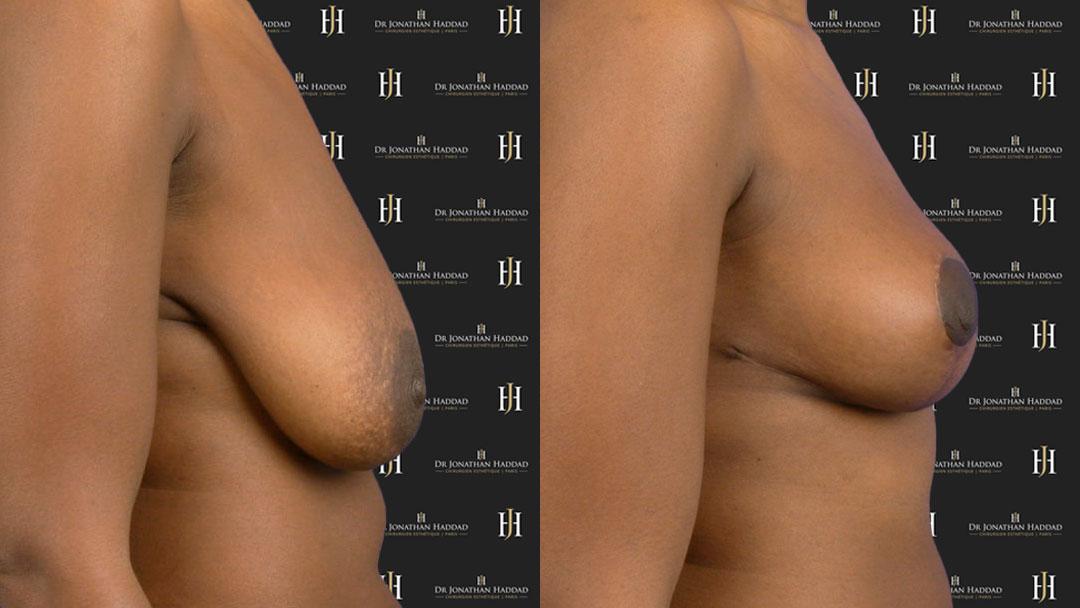 chirurgie de réduction mammaire par le Dr HADDAD