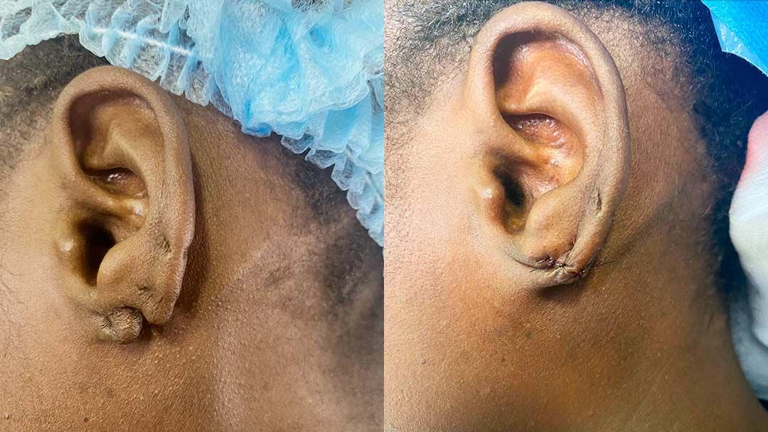Chirurgie réparatrice du lobe d'oreille déchiré