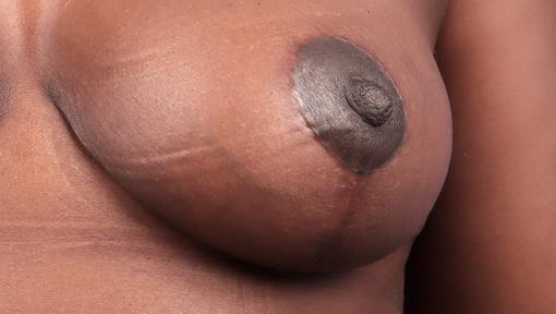 Résultat d'une réduction mammaire avec cicatrice en I