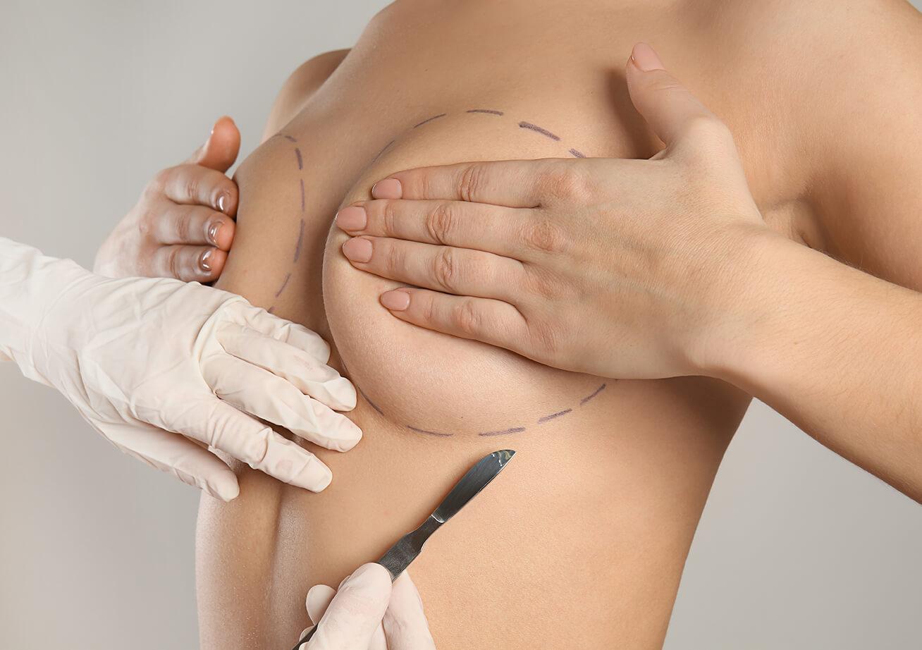 Les types de cicatrices après une réduction du volume des seins
