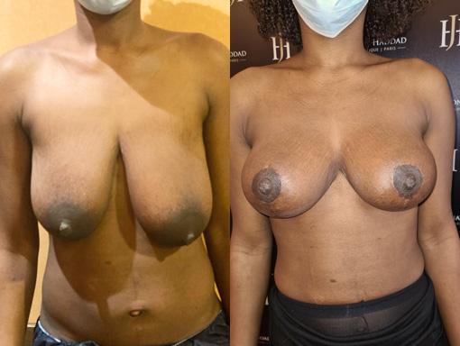 Chirurgie de réduction mammaire prise en charge par la sécurité sociale