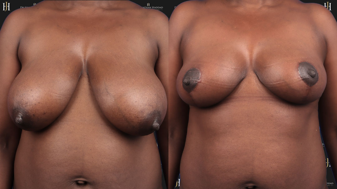 Photo de résultat d'une éduction mammaire