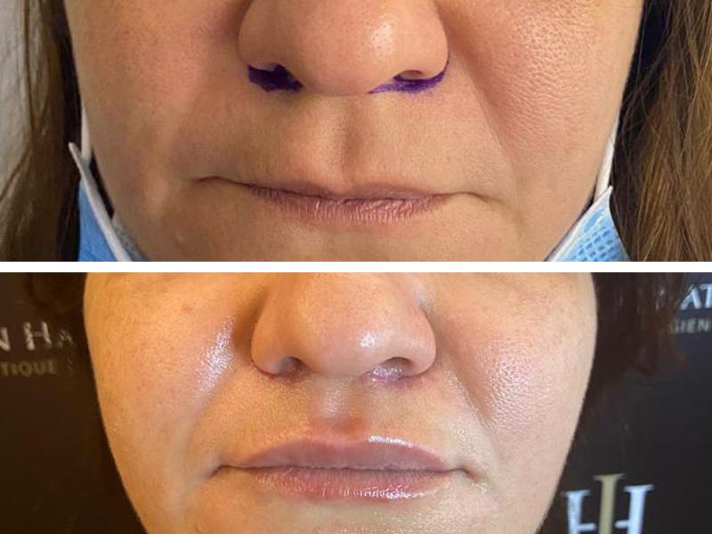 Résultat après un lifting de la lèvre supérieure