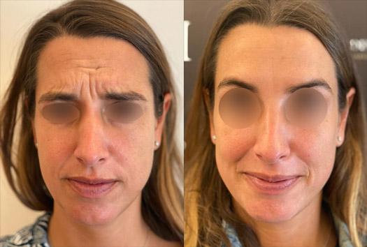 Résultat du Baby Botox sur rides du front