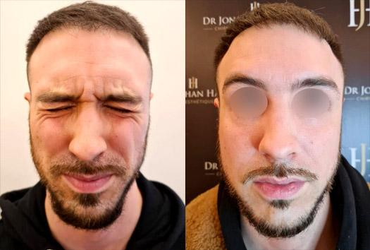 Avant-Après injections Baby Botox