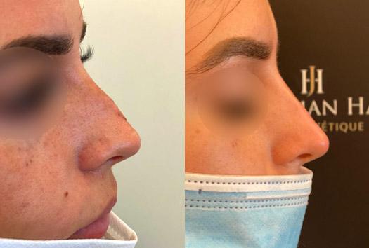 Résultat après injections de hyaluronidase au niveau du nez